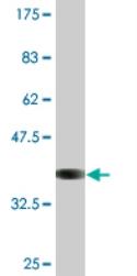 Western blot - ATPase Na+/ K+  beta 2 antibody (ab76509)