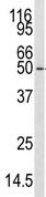 Western blot - CaMKK antibody - N-terminal (ab76534)