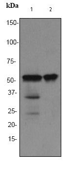 Western blot - TdT antibody [EPR2976Y] (ab76544)