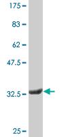 Western blot - PRRG1 antibody [1C7] (ab76556)