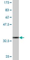 Western blot - GnRH antibody (ab76560)