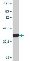 Western blot - Metabotropic Glutamate Receptor 5 antibody (ab76561)