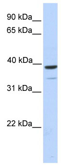 Western blot - TRIM27 antibody (ab76587)