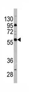 Western blot - CD19 antibody - Carboxyterminal end (ab76591)