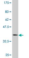Western blot - PTMS antibody (ab76603)