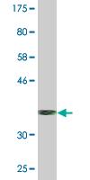 Western blot - SRP68 antibody (ab76604)