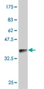 Western blot - SDHD antibody (ab76607)
