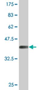 Western blot - LAD1 antibody (ab76610)