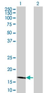 Western blot - LCN1 antibody (ab76611)