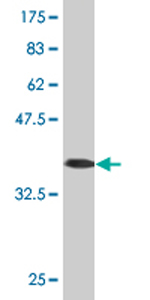Western blot - CYP4F3 antibody (ab76613)