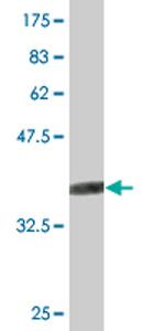 Western blot - SMCP antibody (ab76614)