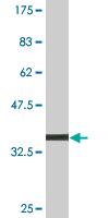 Western blot - MDH1 antibody (ab76616)