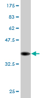 Western blot - TIMM8B antibody (ab76619)