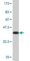 Western blot - CKAP2 antibody (ab76620)
