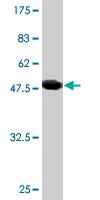 Western blot - RAB30 antibody (ab76622)