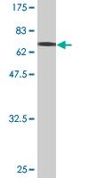 Western blot - TUBB2A antibody (ab76624)
