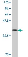 Western blot - Tuftelin 1 antibody [2C10] (ab76625)