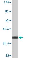Western blot - UGT2B4 antibody (ab76626)