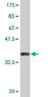 Western blot - Desmocollin 2 antibody (ab76628)