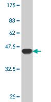 Western blot - RHEB antibody (ab76629)