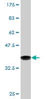 Western blot - DECR1 antibody (ab76630)