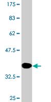Western blot - RBP2 antibody (ab76631)
