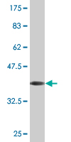 Western blot - DMP1 antibody (ab76632)
