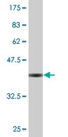 Western blot - SURF5 antibody (ab76634)