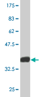 Western blot - EPB41L1 antibody (ab76635)