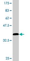 Western blot - TBCA antibody (ab76636)