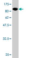Western blot - CCDC99 antibody (ab76670)
