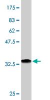 Western blot - FBLIM1 antibody (ab76673)