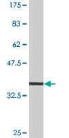 Western blot - Myosin IXA antibody (ab76683)