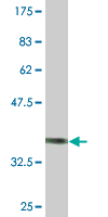 Western blot - CHODL antibody [leave blank] (ab76710)