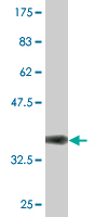 Western blot - KIRREL 3 antibody [Not required] (ab76713)