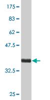 Western blot - KRTAP13-1 antibody [leave blank] (ab76722)