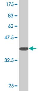 Western blot - SLC25A18 antibody (ab76723)