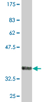 Western blot - PCGF5 antibody (ab76724)
