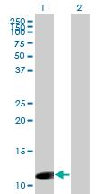 Western blot - ORF1 FL49  antibody (ab76726)