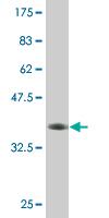 Western blot - ABCC11 antibody (ab76727)