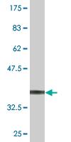 Western blot - SLC26A9 antibody (ab76730)