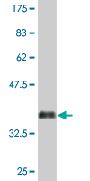 Western blot - ACRC antibody (ab76731)