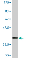 Western blot - CHURC 1 antibody (ab76732)