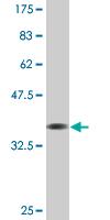 Western blot - RCSD 1 antibody (ab76733)