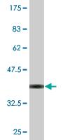 Western blot - MIPOL 1 antibody (ab76734)