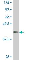 Western blot - C18ORF23 antibody (ab76735)