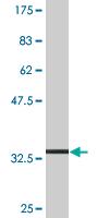 Western blot - SLC36A2 antibody (ab76736)
