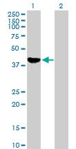 Western blot - ADH1C antibody (ab76745)
