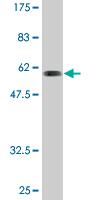 Western blot - SNX11 antibody (ab76762)