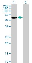 Western blot - Retinoic Acid Receptor gamma antibody (ab76776)